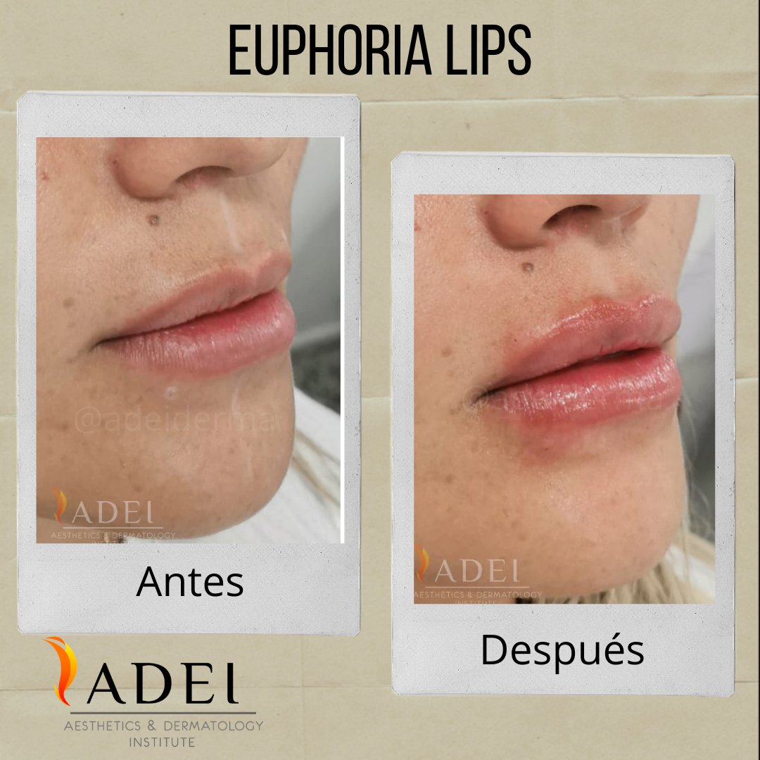 Euphoria Lips